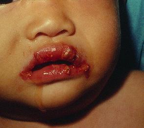 患上川崎症的兒童口腔黏膜變化,如草莓舌或嘴唇紅裂甚至出血。
