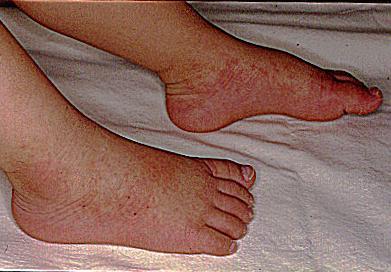 「川崎症」出現的症狀包括高燒、皮疹、紅眼、腫脹和渾身疼痛等。